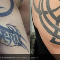 Arm Tattoo Removal before and after1