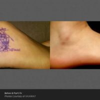 Foot tattoo removal using laser
