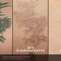 Tattoo removal using PicoSure laser – before and after
