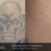 arm tattoo removal at Lazer Wizard
